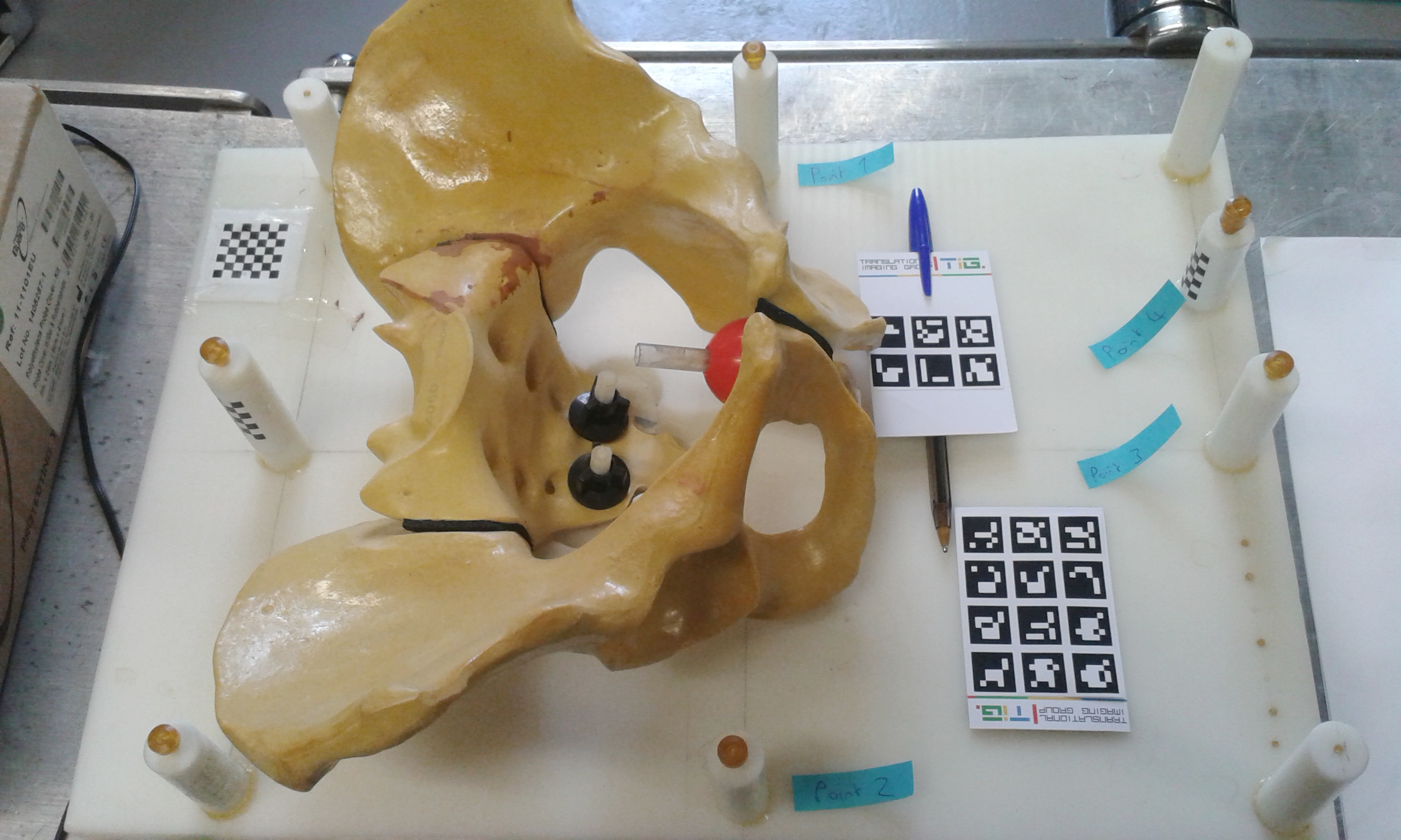 The pelvis phantom at UCL.